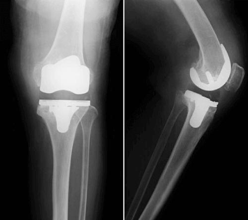人工膝関節置換術